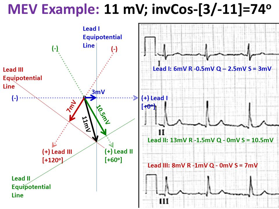 MEV Example: 11 mV; invCos-[3/-11]=74o